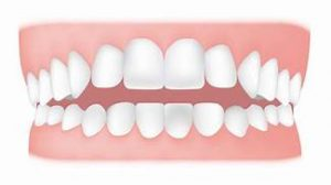Dental Issues for Teenagers with Autism
